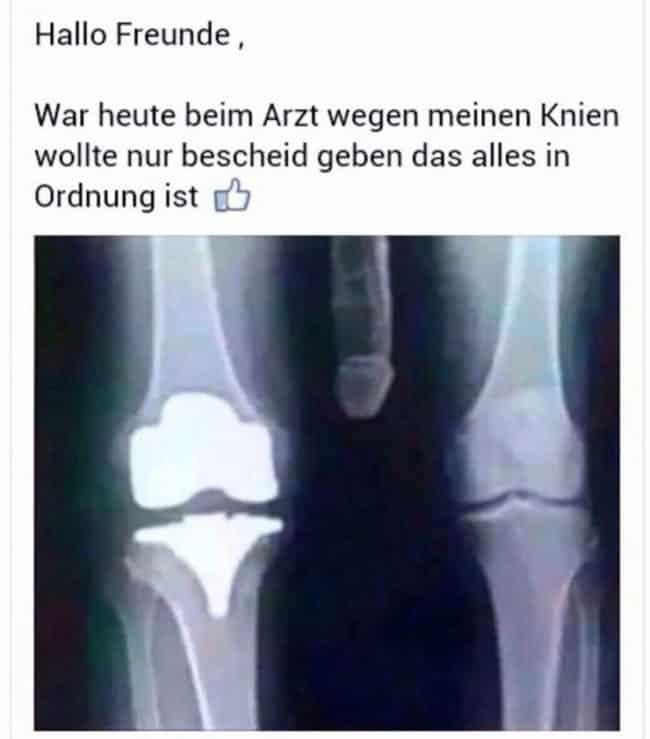 gesunde knie sind wichtig dexinfo nachrichten news