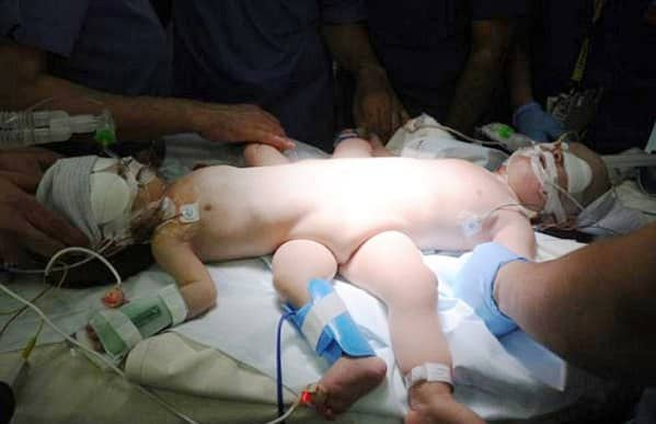 Yemeni Siamese Twins Successfully Separated