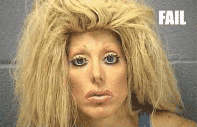 15_Most_Outrageous_Plastic_Surgery_Fails