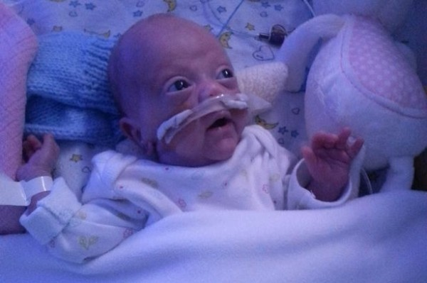 Parents_refused_to_sign_do_not_resuscitate_form_before_premature_baby_was_born_-_now_tot_is_thriving