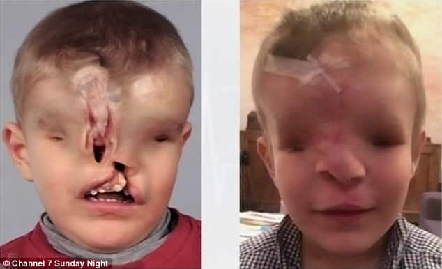 Born_With_No_Nose_Eyes_And_Upper_Jaw_A_Three-Year-Old_Boy_Unveils_His_New_Face._