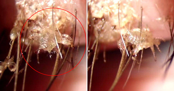 This_horrifying_close-up_video_of_eyelash_lice_will_give_you_nightmares