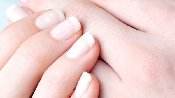 weisse-flecken-auf-den-fingernaegeln-sind-meist-kein-grund-zur-sorge-