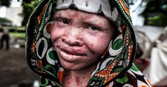 20160526kult-naponta-csonkitjak-az-albinokat